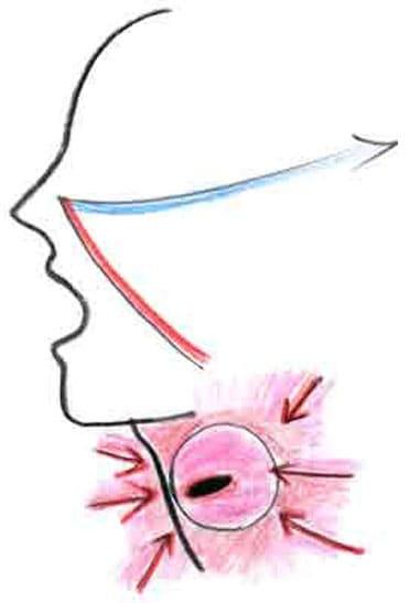 喉声のポジション イラスト